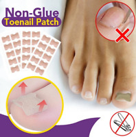 50 sheets Non-Glue Toenail Patch Ingrown Toenail Correction Pedicure Tools