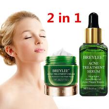 Tea Tree Facial Acne Treatment Serum Essence Face Scar Pimple Removal Skin Care