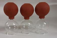 Schröpfgläser 3 25er Saugball Schöpfglas Massageglas schröpfen