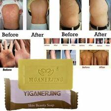 Antibacterial Sulfur Soap Prevent Fungus Anti Fungus Acne Treatment 1Pc