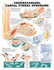 Carpal Tunnel Syndrome, Anatomical Chart/Charts/Model