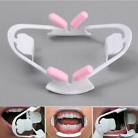 3D Oral Dental Mouth Opener Intraoral Cheek Lip Retractor  Orthodontic Plastic--