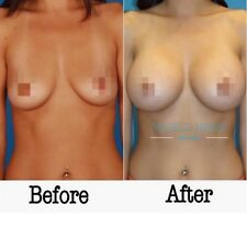 Breast / Butt Enlargement / Enhancement Cream - Firming, Lifting ENLARGEMENT NOW