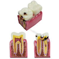 6 Times Caries Comparation Tooth Model Dental Lab Patient Study Teeth Model