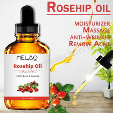 100% PURE ROSEHIP OIL: ORGANIC 118ML COLD PRESSED OIL FOR FACE, SKIN NAILS HAIR