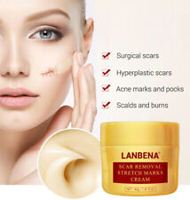LanBeNa Acne Scar Removal Cream Skin Repair Face Spots Stretch Marks Treatment