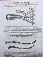 Urologue 1614 Instruments de Chirurgie Médecine Gravure sur Bois Ambroise Paré