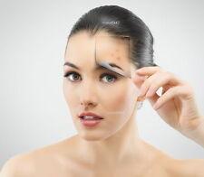 SUPER PRICE Anti Freckles Whitening Cream Removes Pigmentation Brown Spots BEST