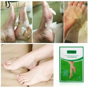 2pcs Deep Exfoliation Foot Peel Socks Feet Baby Skin Care Peeling Remove Dead