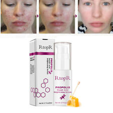 RtopR Propolis Repair Acne Brightening Serum Acne Scar Spots Cleaning Serum  5A6