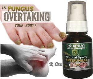 Toenail Fungus Removal Eliminar el hongo de las uñas sana uña enfermas quick 2oz