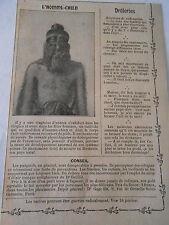 L'Homme Chien Fêtes Foraines Birmanie Image Print 1909