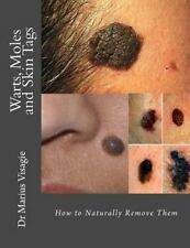 Warts, Moles and Skin Tags : How to Naturally Remove Them: By Visagie, Marius...