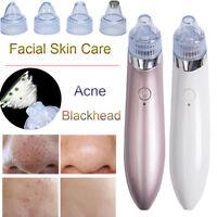 1X Blackhead Vacuum Acne Cleaner Pore Remover Electric Skin Facial Cleanser Care