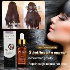 Unisex Smooth Hair Growth Snail Care Thickening Hair Essence Liquid For All Hair