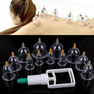 12 Cups/set Medical Chinese Vacuum Cupping Body Massage Therapy Healthy Suction