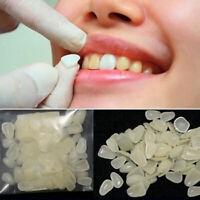 100Pcs Ultra-Thin Dental Resin Teeth Temporary Crown Tooth Veneers Whitening US