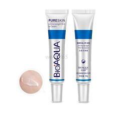 Visage Anti acné cicatrice supprimer Crème visage soins de la peau pores crème