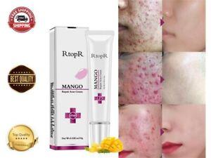 Acne Face Cream 15g Blackhead Scar Marks Removal Repair Mango Gel Shrink Pores