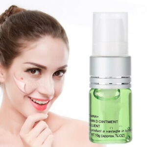 Painless Mole Skin Dark Spot Removal Face Wart Tags Freckle Removal Repair Cream