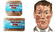Sulfur Soap Acne Anti Fungal Dermatitis Eczema Rosacea Scabies 2x60 grams