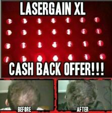 Laser Comb Hair Growth Loss Promoter Regrowth (28x More Power Than Other Lasers)