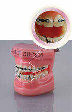 20pcs Dental Orthodontic Ceramic Resin Clear Buttons Lingual&Buccal Round