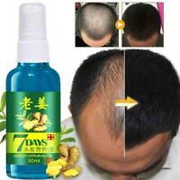 30 ML Schnelle Haar Wachstum Essenz Ingwer Flüssige Haar Pflege Haarausfall G1M9