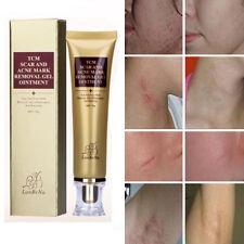 Scar Acnes Stretch Marks Acnes Scar Keloid Skin Burns Removal Gel Cream 30g