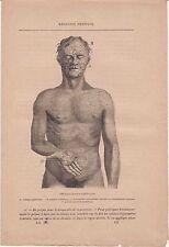 Ancienne gravure médicale 133 - Médecine pratique Affection cutanée syphilitique