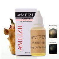 AMEIZII 20ml Croissance des cheveux Essence Prévention des pertes de cheveux