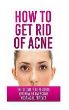 USED (LN) How to Get Rid of Acne: The Ultimate Cure Guide for How to Overcome Yo