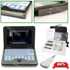 ecografo, macchina portatile digitale, sistemi diagnostici,sonda convessa 3.5MHz
