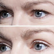 No.1 INSTANT EYELID MAKEOVER- TAKE 10 YEARS OFF APPEARANCE! SHIPS FROM MELBOURNE