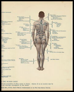 Rare 90+yr Old Antique Medical Print Anatomy Body SITES PAIN Chart Dr Somerville