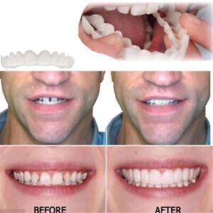 Top And Bottom Cosmetic Veneers Instant Smile Braces Snap On Smile Fake Teeth