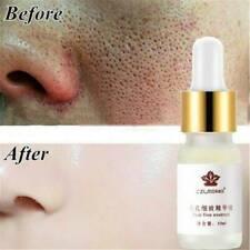 Pore Shrinking Essence Tightening Oil-control Moisturizing Blackhead Remover JK