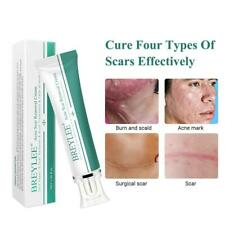 Removal Scar Cream Face Pimples Scar Stretch Marks Removal Acne Treatment PW