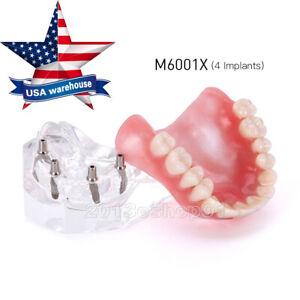 Dental Implant Upper Teeth Model Demo Overdenture Restoration with 4 Implants