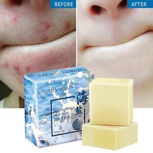 AMAZING~Sea Salt Soap Goat Milk Remove Acne Oil-Control Clean Skin Shrinks Pores