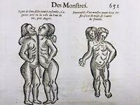 Hermaphrodite 1614 Gynécologie Les Ponts de Cé Rare Gravure Ambroise Paré Jumeau