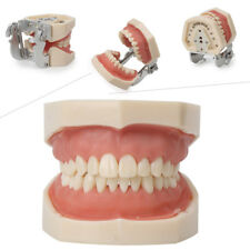 kilgore Nissin Type Dental Typodont Model 200 with Removable Teeth Teaching kit