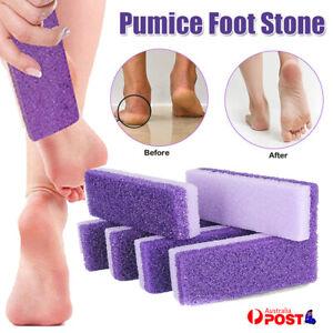 Exfoliate Foot File Rasp Scrubber Pedicure Dead Skin Callus Remover Peel massage