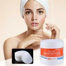 2019 Acne Treatment Pads Pores Blemish Remove Pimple Clear Pad Facial Cleansing~