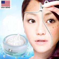Whitening Cream Hydroquinone Hyperpigmentation Anti Melasma Face Skin Bleaching