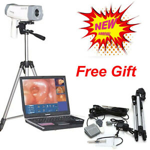 800,000 pixels Video Electronic Colposcope Gynecology EndoVaginal +Tripod