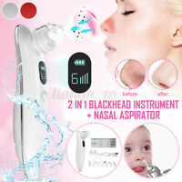 Electric Baby Nasal Aspirator Vacuum Nose Mucus Snot Sucker Blackhead Cleaner