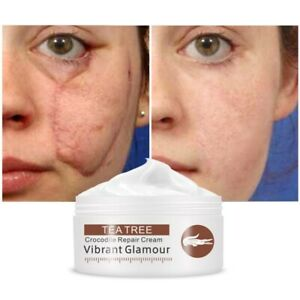 Acne Treatment Cream Repair Face Marks Remove Acne Scar Crocodile Whitening for