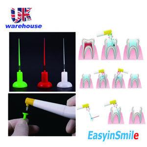 60pcs Dental Endodontic Activator Tips for Sonic Irrigator 3D Clean Easyinsmile