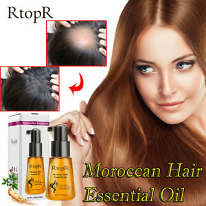 Moroccan Prevent Hair Loss Product Hair Growth Essential male and female can use